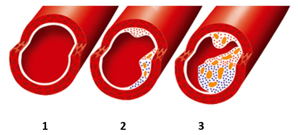 Pathogenese der Arterienverkalkung