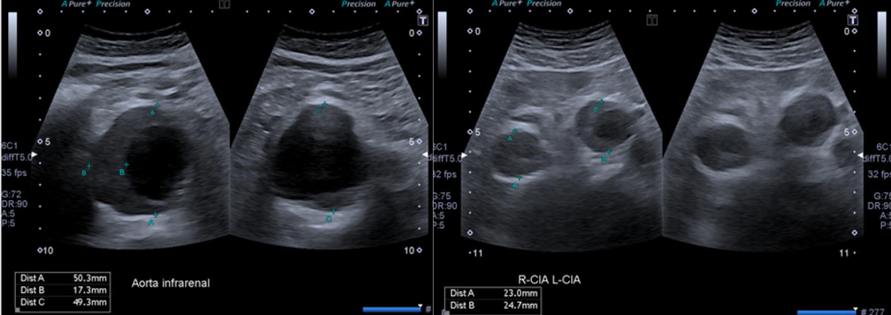Aneurysma Ultraschall