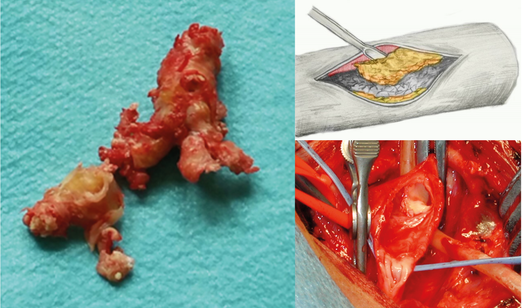 Thrombendarterektomie