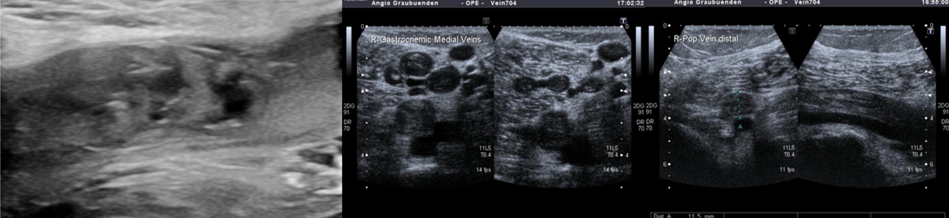 Duplexsonographie Thrombose