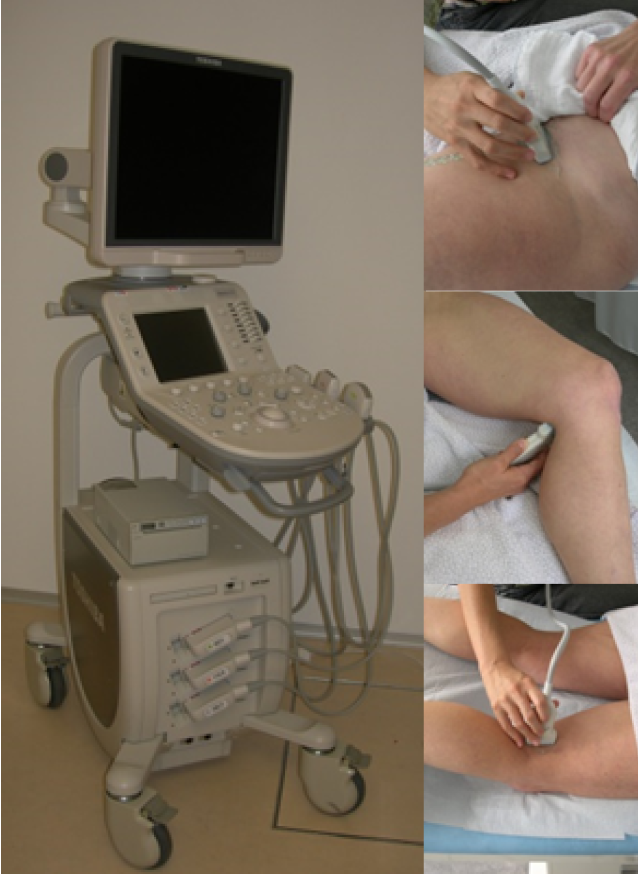 Ultraschalldiagnostik Thrombose