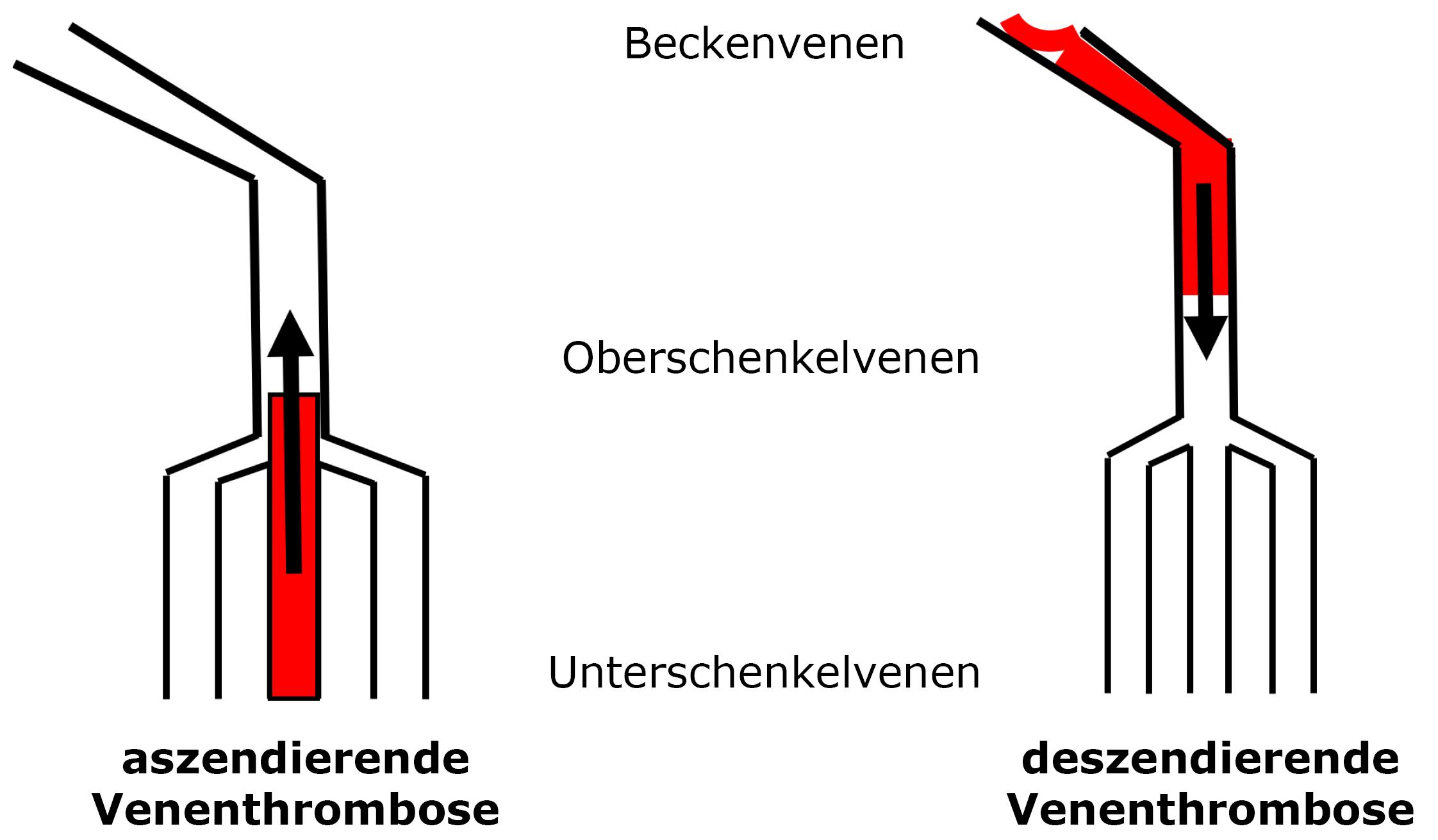 Venenthrombose Schema