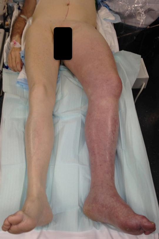 deszendierende Beinvenenthrombose