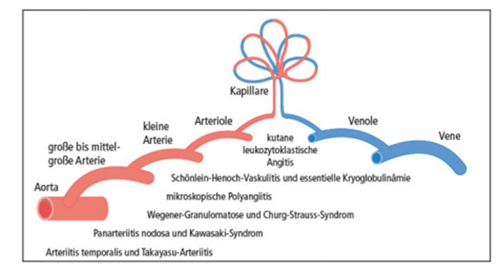 Einteilung Vaskulitis