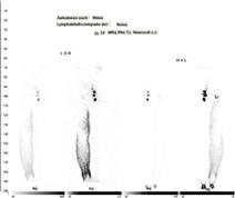 Lymphszintigraphie