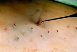 Phlebektomie