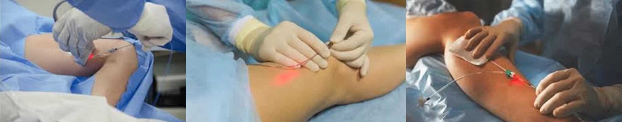 Vorgehen Lasertherapie